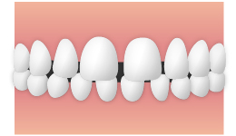 空隙歯列弓(くうげきしれつきゅう) すきっ歯