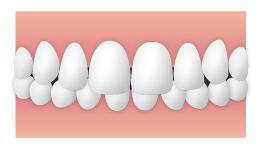 上顎前突(じょうがくぜんとつ) 出っ歯